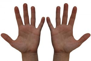 Не одинаковые по длине фаланги пальца